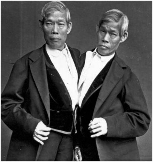 Chang και Eng: Οι πρώτοι διάσημοι  δίδυμοι σε ολόκληρο τον κόσμο