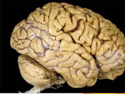 Λίγες θερμίδες για υγιή εγκέφαλο