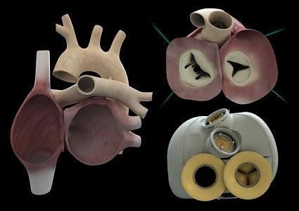 Τεχνητή καρδιά, ένα νέο τεχνολογικό θαύμα καθ οδόν!