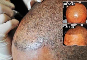 Φαλάκρα τέλος με ένα… τατουάζ μαλλιών! (photos)