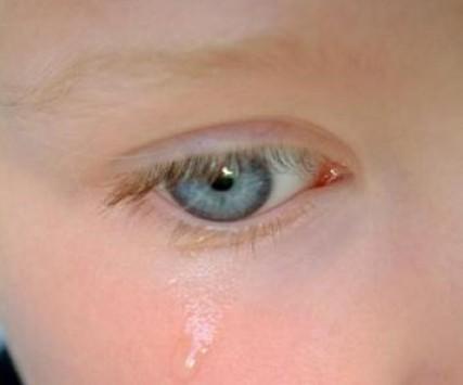 Ξάνθη: Τραγωδία με 4χρονο που ήπιε χλωρίνη