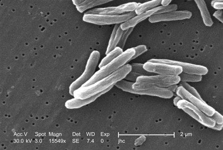 Φυματίωση, η ασθένεια των φτωχών