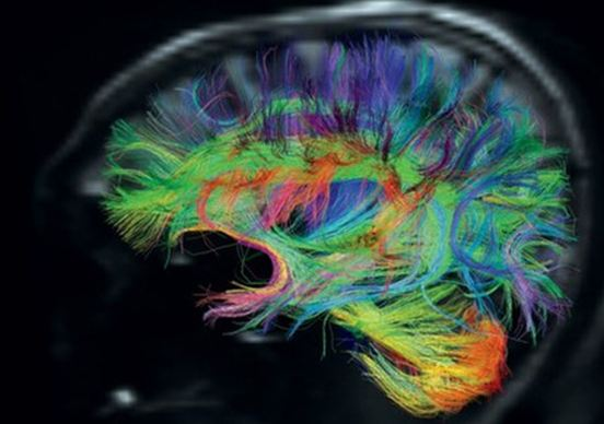 Με σκάκι μοιάζει η γεωμετρική αρχιτεκτονική του ανθρώπινου εγκεφάλου