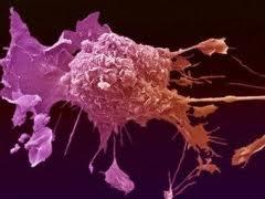 Κολλητική μία στις έξι μορφές καρκίνου