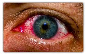 Οφθαλμικές αλλεργίες