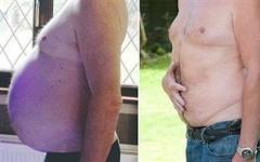 Η τεράστια κοιλιά του ήταν τελικά όγκος!