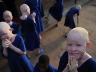 ΣΟΚ! Δολοφονούν τους αλμπίνους για να κάνουν τελετές μαύρης μαγείας