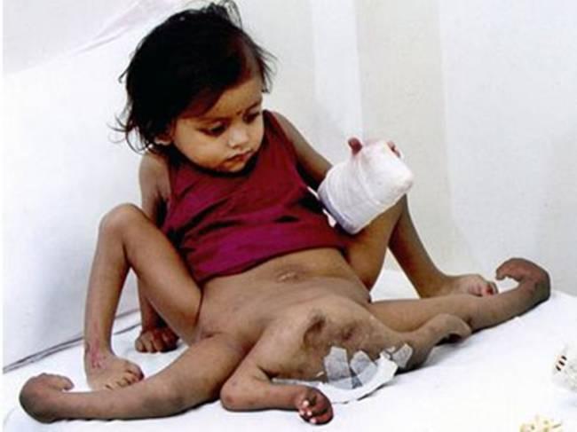 Ινδία: Βρέφος γεννήθηκε με οκτώ άκρα!