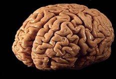 Θύμα εγκεφαλικής βλάβης περιπλέκει το μυστήριο της συνείδησης