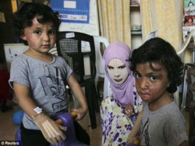 Συγκλονιστική εικόνα: Η 13χρονη που έχασε το πρόσωπο της