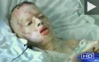 Η συγκλονιστική ιστορία ενός 8χρονου που βιάστηκε και κάηκε ζωντανός