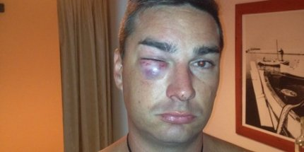 Καταγγέλλει απαγωγή, ξυλοδαρμό και ληστεία από αστυνομικούς στην Κρήτη