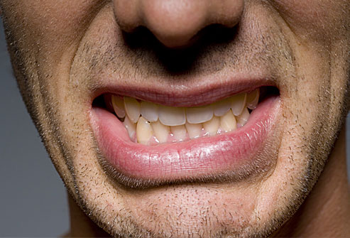 Επικίνδυνο το τρίξιμο των δοντιών στον ύπνο