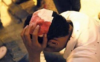 Λάρισα: Ρατσιστική επίθεση σε στέκι Πακιστανών