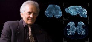 Ο Έλληνας που χαρτογραφεί τον ανθρώπινο εγκέφαλο