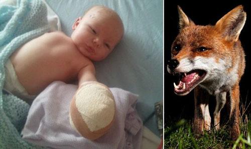 Επίθεση αλεπούς δέχθηκε βρέφος στο σπίτι του στη Βρετανία