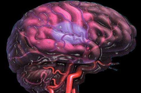Κύτταρα που επιβιώνουν από το εγκεφαλικό επεισόδιο διαθέτει ο εγκέφαλος