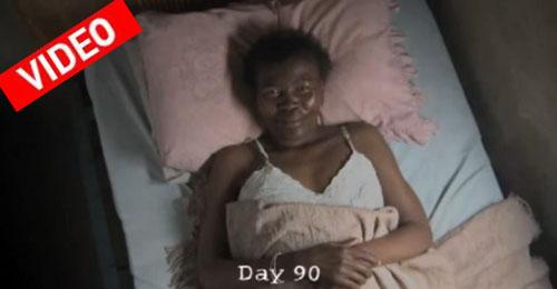 Συγκλονιστική μεταμόρφωση γυναίκας με AIDS μέσα σε 90 ημέρες