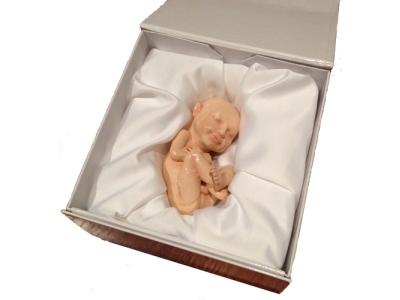 Τρισδιάστατη εκτύπωση αγέννητων μωρών από αμερικανική εταιρεία