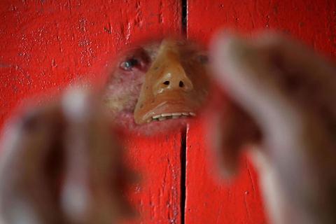 dc60dd93ca9 Οι άνθρωποι που λιώνουν - Σπάνια ασθένεια πλήττει χωριό της Βραζιλίας