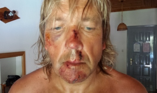 Σοβαρό ατύχημα με ποδηλάτη στη Σκιάθο
