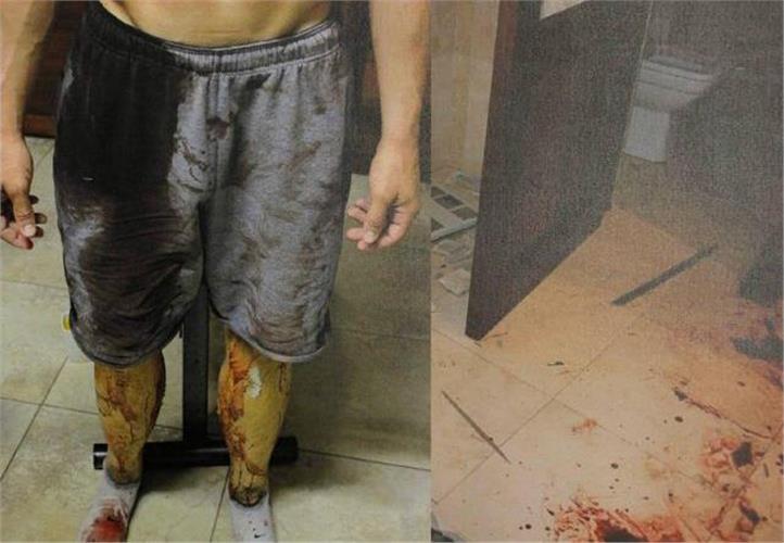 Φωτογραφίες-σοκ: Ο Πιστόριους γεμάτος με το αίμα της συντρόφου του στο μπάνιο του σπιτιού τους