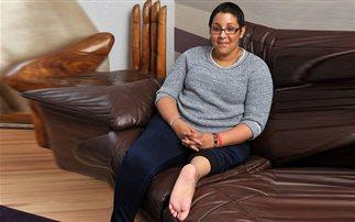Της ακρωτηρίασαν το πόδι και το έβαλαν ανάποδα!
