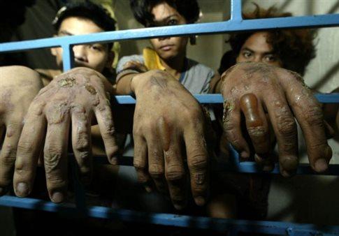 Διεθνής Αμνηστία: Τα βασανιστήρια είναι διαδεδομένη τακτική σε 141 χώρες