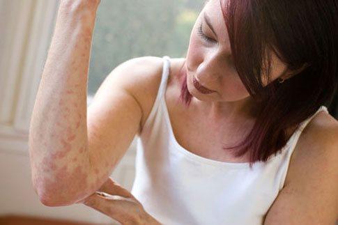 Ένα φυσικό ενυδατικό αλλάζει τη θεραπεία της ατοπικής δερματίτιδας
