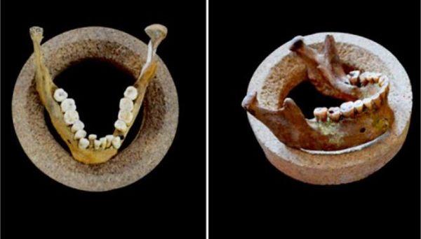 Ο άνθρωπος είχε καλύτερο χαμόγελο πριν 12.000 χρόνια σύμφωνα με έρευνα