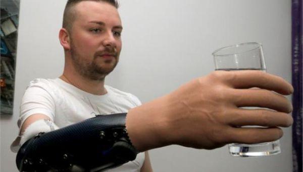 Για πρώτη φορά επιτεύχθηκε «βιονική ανακατασκευή» χεριού σε τρεις άνδρες