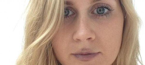 Φούσκωσε τα χείλη της με μια συσκευή βεντούζα για να μοιάσει στην Καρντάσιαν [εικόνες]