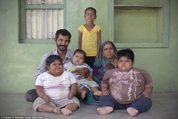 Τα πιο παχύσαρκα παιδιά του κόσμου - Πατέρας πουλάει το νεφρό του για να αδυνατίσουν