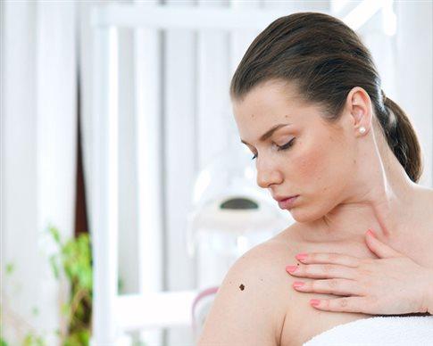 Η βιταμίνη Β3 μειώνει τον κίνδυνο εκδήλωσης καρκίνου του δέρματος