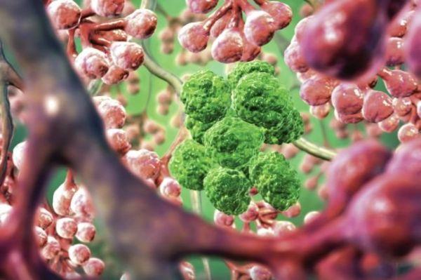 Ο έρπης μπορεί να σταματήσει τον καρκίνο του δέρματος