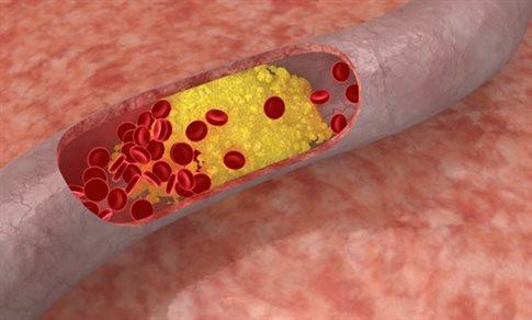 Προς έγκριση νέα θεραπεία για την υψηλή «κακή» χοληστερόλη