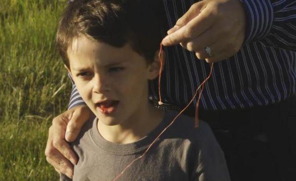 ΗΠΑ: Εβγαλε το δόντι του γιου του με... ελικόπτερο