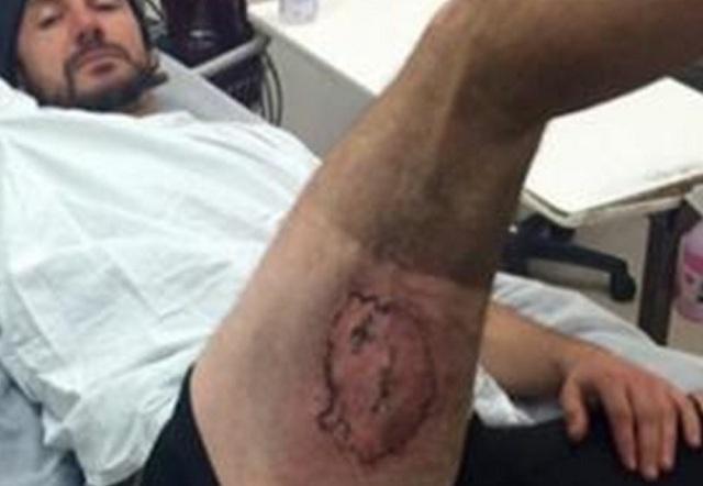 Ποδηλάτης υπέστη εγκαύματα όταν πήρε φωτιά το iPhone του