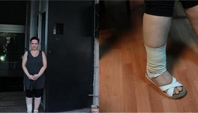 Τουρκία: Ξυλοκόπησαν έγκυο επειδή «φορούσε αποκαλυπτικά ρούχα»
