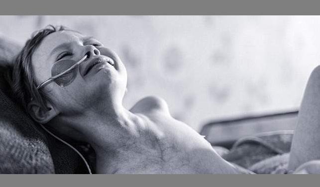Πεθαίνει το «κορίτσι που έδειξε το πρόσωπο του καρκίνου». Το ανακοίνωσε ο πατέρας