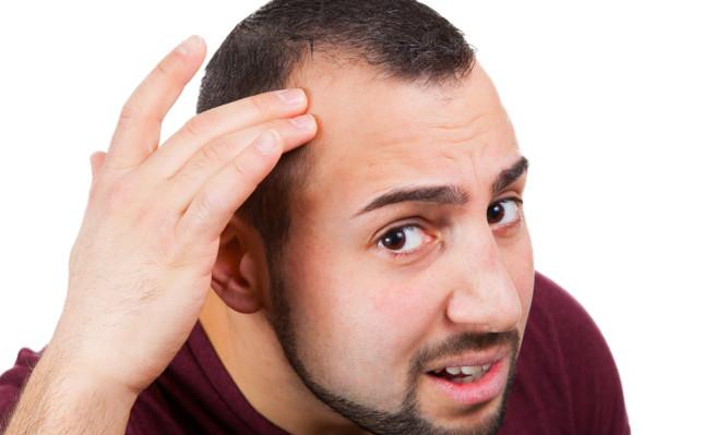 Γιατί κάποιοι κάνουν πιο γρήγορα φαλάκρα. Τι βρήκαν οι επιστήμονες