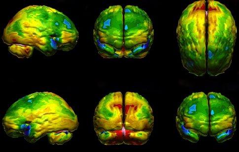 Εξέταση μπορεί να διακρίνει αν ο ασθενής έχει κατάθλιψη ή άνοια