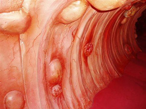 Οι μεγάλοι πολύποδες δεν συνεπάγονται πάντα καρκίνο παχέος εντέρου