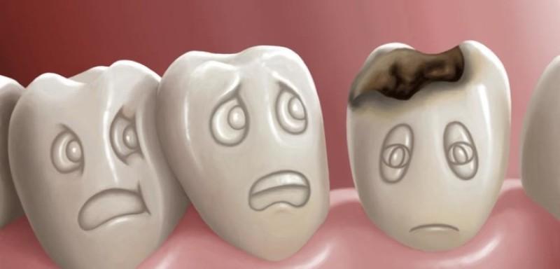 Χαλασμένα δόντια: Ποιους κινδύνους κρύβουν για την υγεία;