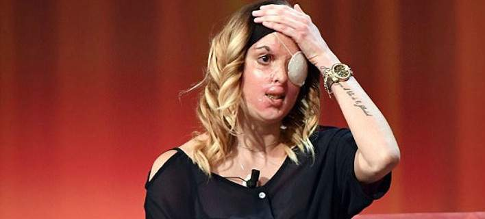 Σοκάρει η Ιταλίδα καλλονή: Μου έριξε οξύ στο πρόσωπο ο σύντροφος μου