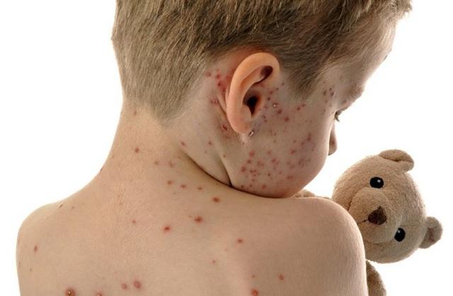 Εξαρση της ιλαράς στην Ευρώπη. Πού οφείλεται