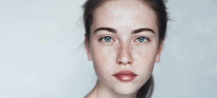 «Χτένισα τα μαλλιά μου μετά από 4 εβδομάδες» -Η δυνατή φωτογραφία μιας γυναίκας με κατάθλιψη