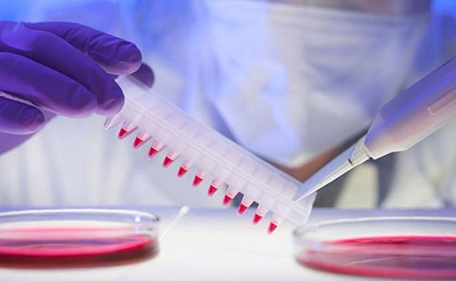 Πειραματικό διαγνωστικό τεστ αίματος «πιάνει» νωρίτερα τον καρκίνο του παγκρέατος