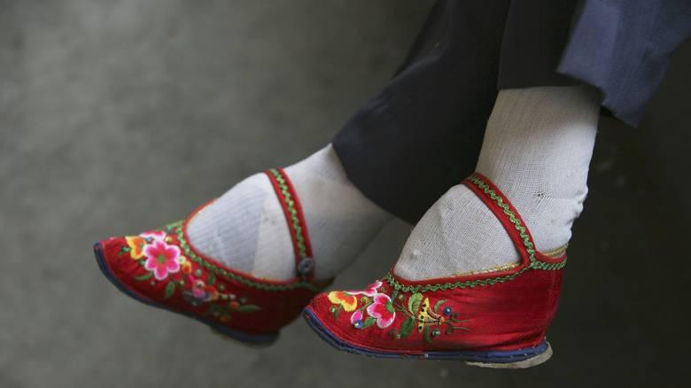 Τα «πόδια του λωτού»: ο πραγματικός λόγος που οι Κινέζες έδεναν τα πόδια τους