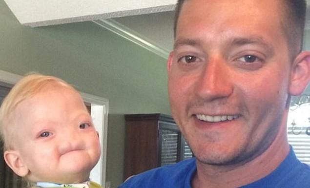 Πέθανε στα 2 του χρόνια το παιδί που γεννήθηκε χωρίς μύτη